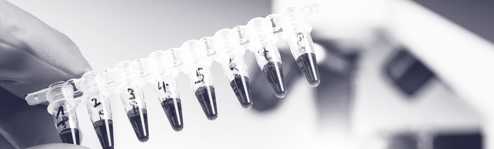 ARK-Invest_Blog-Banner_2019_05_15---Liquid-Biopsies
